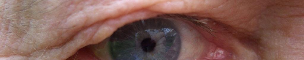eye lid surgeries