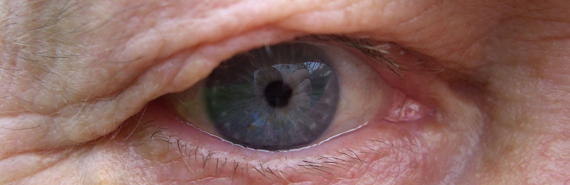 eyelid-surgeries